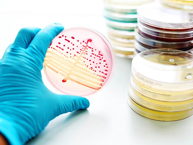 流通過程で新たな細菌に汚染される